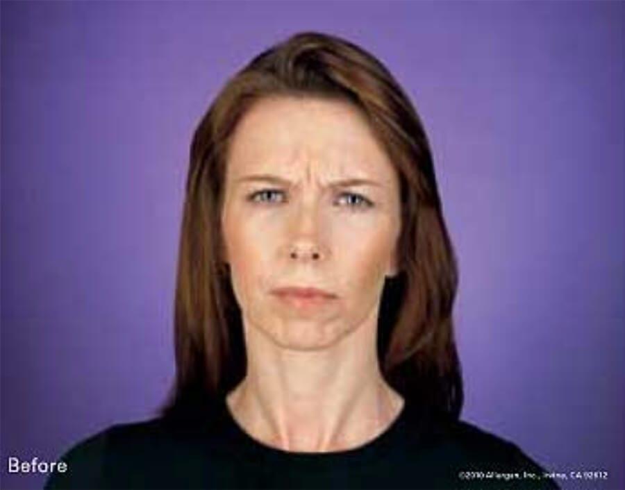 Botox patient before, furrowing brow.